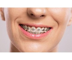 The Dentists at Gentle Dental Putney offers the best Treatment